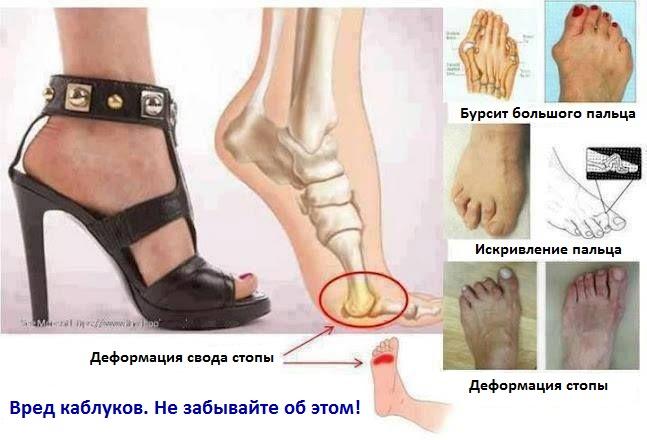 Очевидный вред каблуков и шпилек